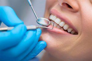 Терапевтическая стоматология - кариес