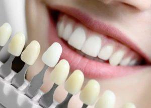 Эстетическая стоматология: красота Ваших зубов