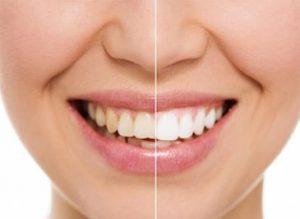 Эстетическая стоматология: реставрация зубов