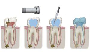 Эндодонтическое лечение: пломбирование канала