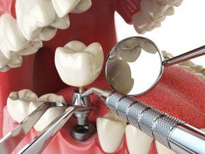 Врач стоматолог-хирург-имплантолог